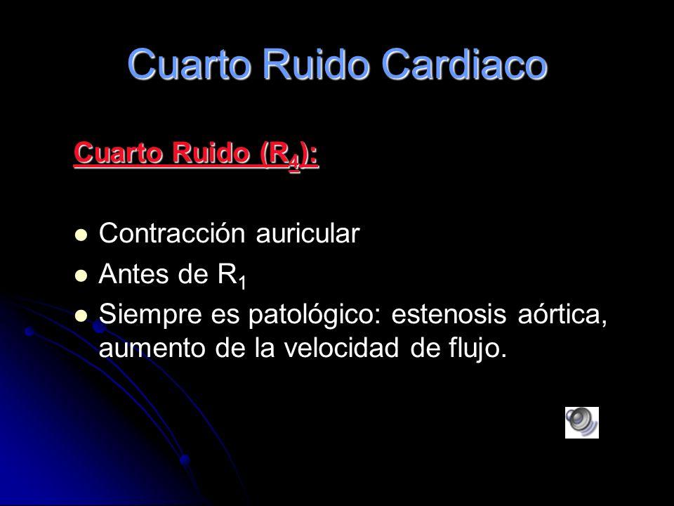 Tercer Ruido: R3 Tercer Ruido: R3 (Tu); puede estar o no presente. Puede ser normal o patológico. R3 es producto de vibraciones durante el llenado ráp