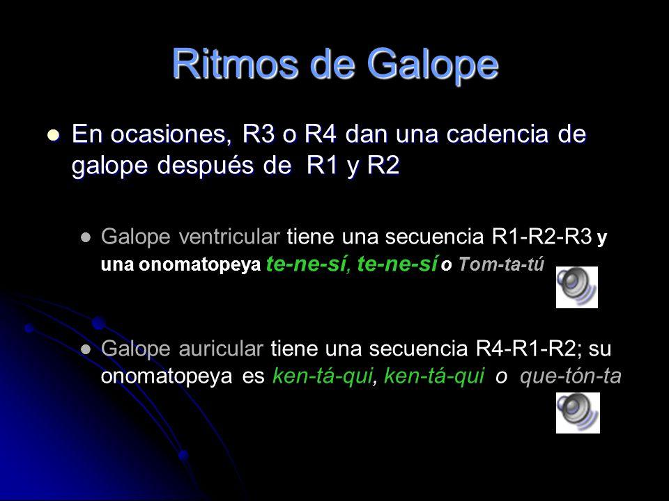 Cuarto Ruido Cardiaco Cuarto Ruido (R 4 ): Contracción auricular Antes de R 1 Siempre es patológico: estenosis aórtica, aumento de la velocidad de flu