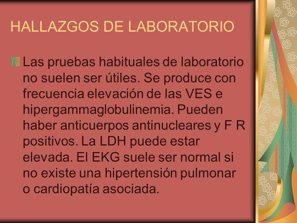 HALLAZGOS DE LABORATORIO Las pruebas habituales de laboratorio no suelen ser útiles. Se produce con frecuencia elevación de las VES e hipergammaglobul