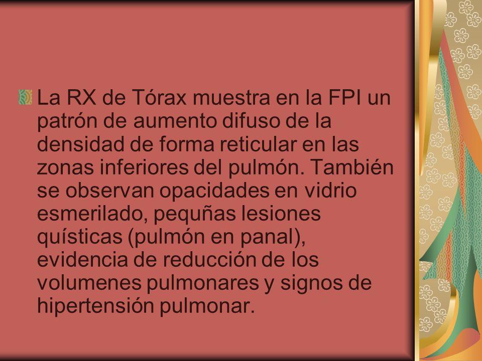 La RX de Tórax muestra en la FPI un patrón de aumento difuso de la densidad de forma reticular en las zonas inferiores del pulmón. También se observan