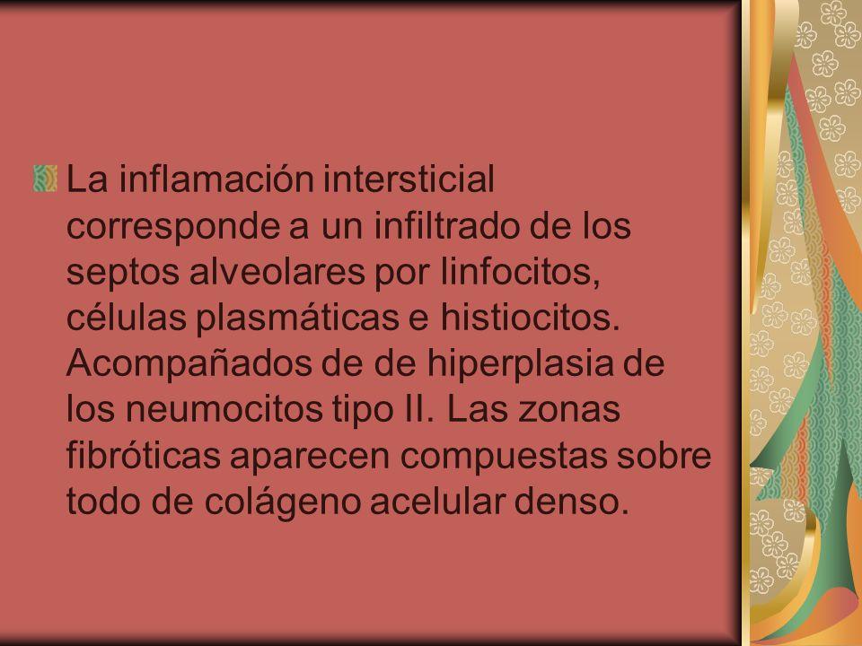 La inflamación intersticial corresponde a un infiltrado de los septos alveolares por linfocitos, células plasmáticas e histiocitos. Acompañados de de