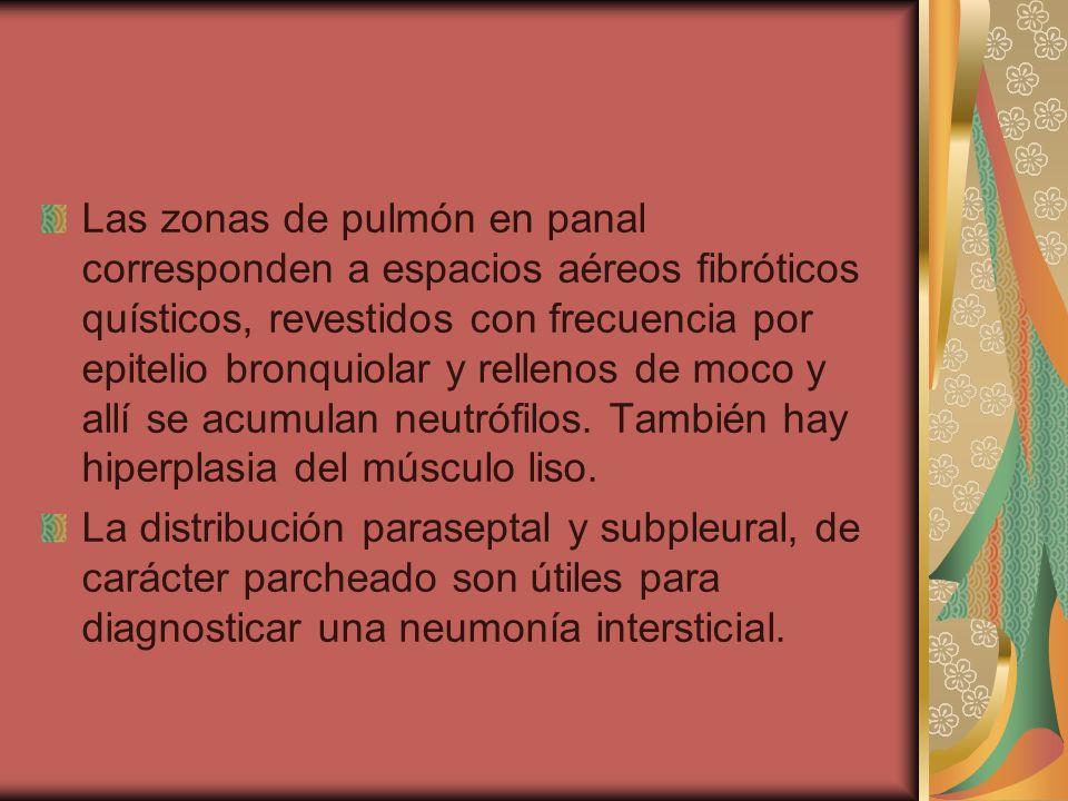 Las zonas de pulmón en panal corresponden a espacios aéreos fibróticos quísticos, revestidos con frecuencia por epitelio bronquiolar y rellenos de moc