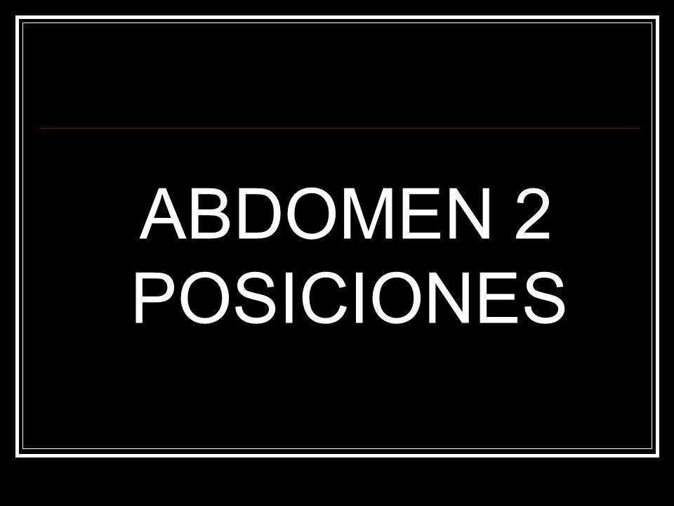 ABDOMEN 2 POSICIONES