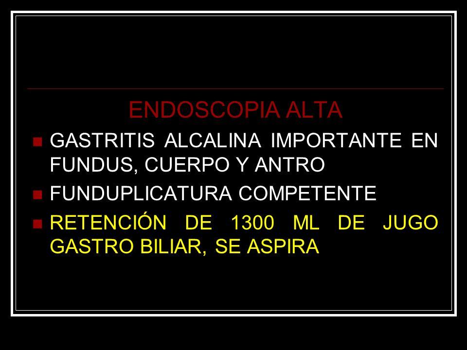 ENDOSCOPIA ALTA GASTRITIS ALCALINA IMPORTANTE EN FUNDUS, CUERPO Y ANTRO FUNDUPLICATURA COMPETENTE RETENCIÓN DE 1300 ML DE JUGO GASTRO BILIAR, SE ASPIR
