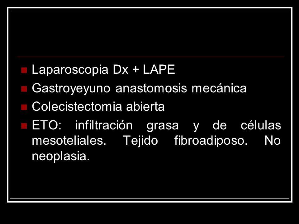 Laparoscopia Dx + LAPE Gastroyeyuno anastomosis mecánica Colecistectomia abierta ETO: infiltración grasa y de células mesoteliales. Tejido fibroadipos