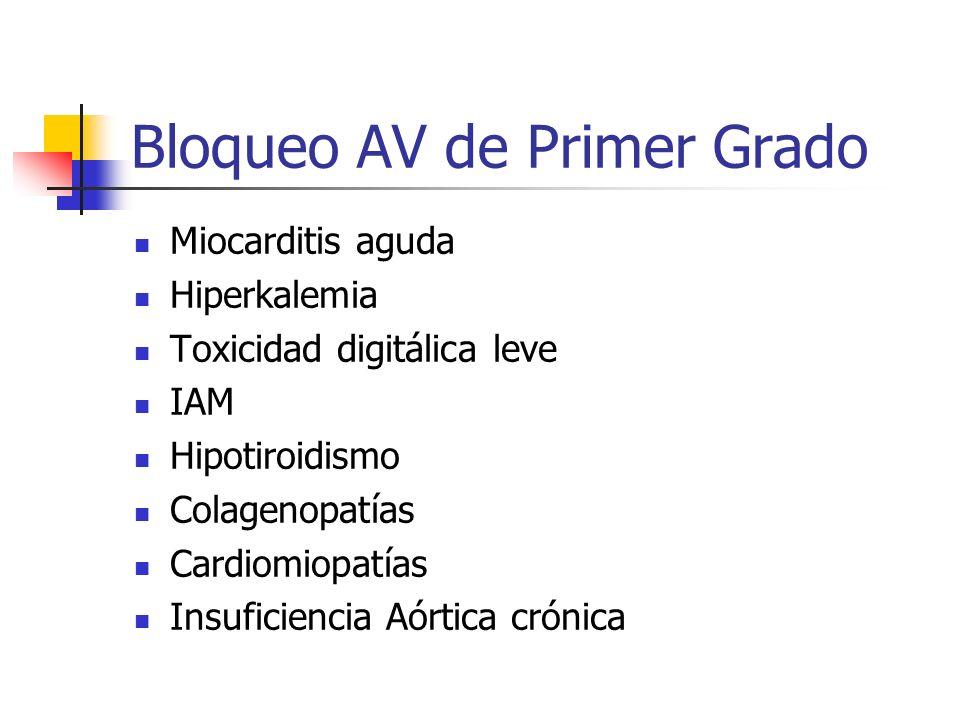 Bloqueo AV de Primer Grado Miocarditis aguda Hiperkalemia Toxicidad digitálica leve IAM Hipotiroidismo Colagenopatías Cardiomiopatías Insuficiencia Aó