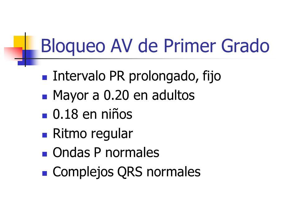 Bloqueo AV de Primer Grado Intervalo PR prolongado, fijo Mayor a 0.20 en adultos 0.18 en niños Ritmo regular Ondas P normales Complejos QRS normales