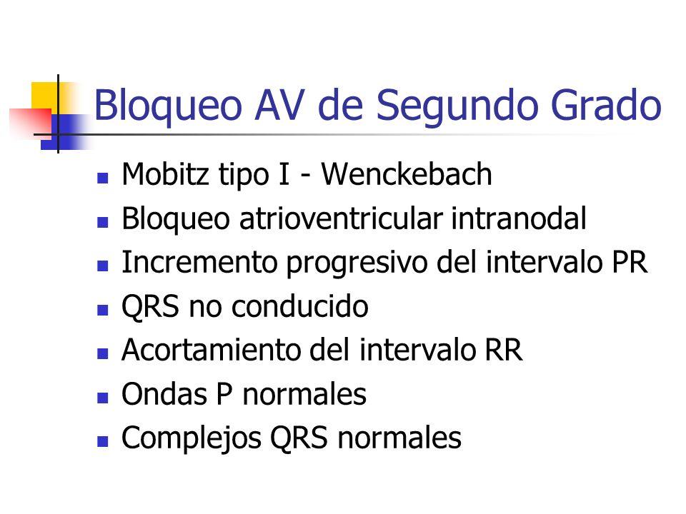 Bloqueo AV de Segundo Grado Mobitz tipo I - Wenckebach Bloqueo atrioventricular intranodal Incremento progresivo del intervalo PR QRS no conducido Aco