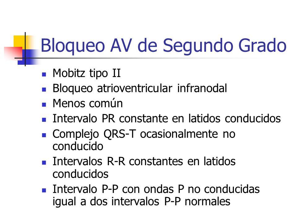 Bloqueo AV de Segundo Grado Mobitz tipo II Bloqueo atrioventricular infranodal Menos común Intervalo PR constante en latidos conducidos Complejo QRS-T