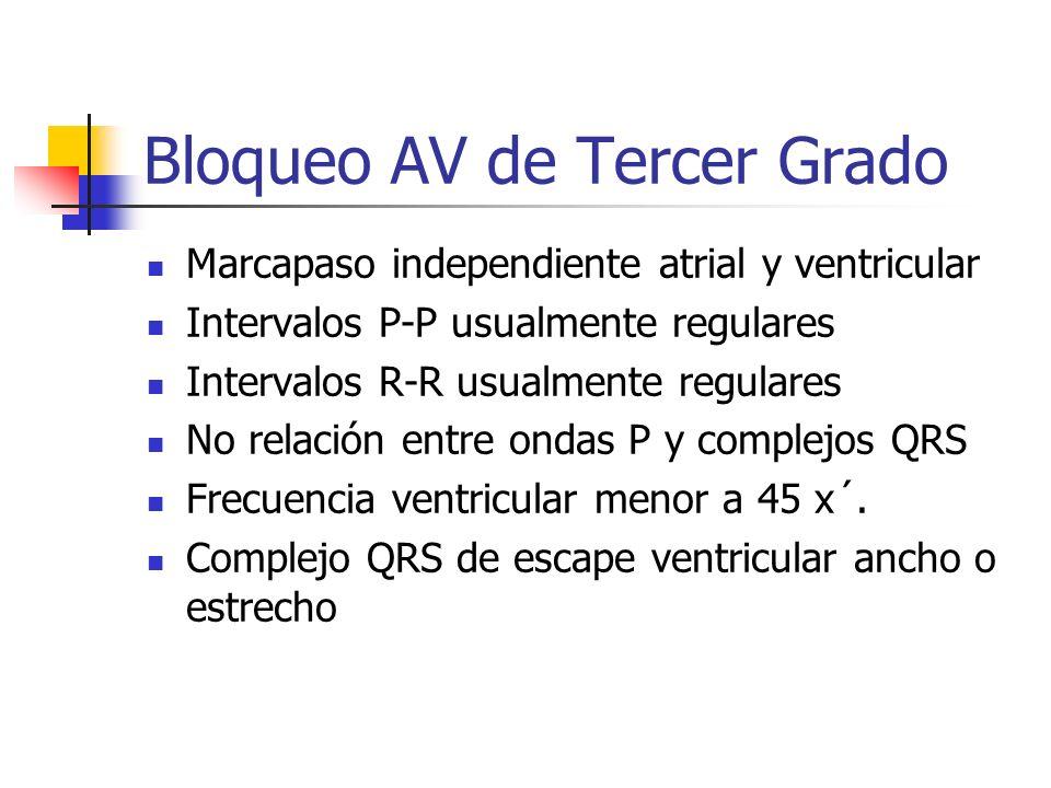 Bloqueo AV de Tercer Grado Marcapaso independiente atrial y ventricular Intervalos P-P usualmente regulares Intervalos R-R usualmente regulares No rel