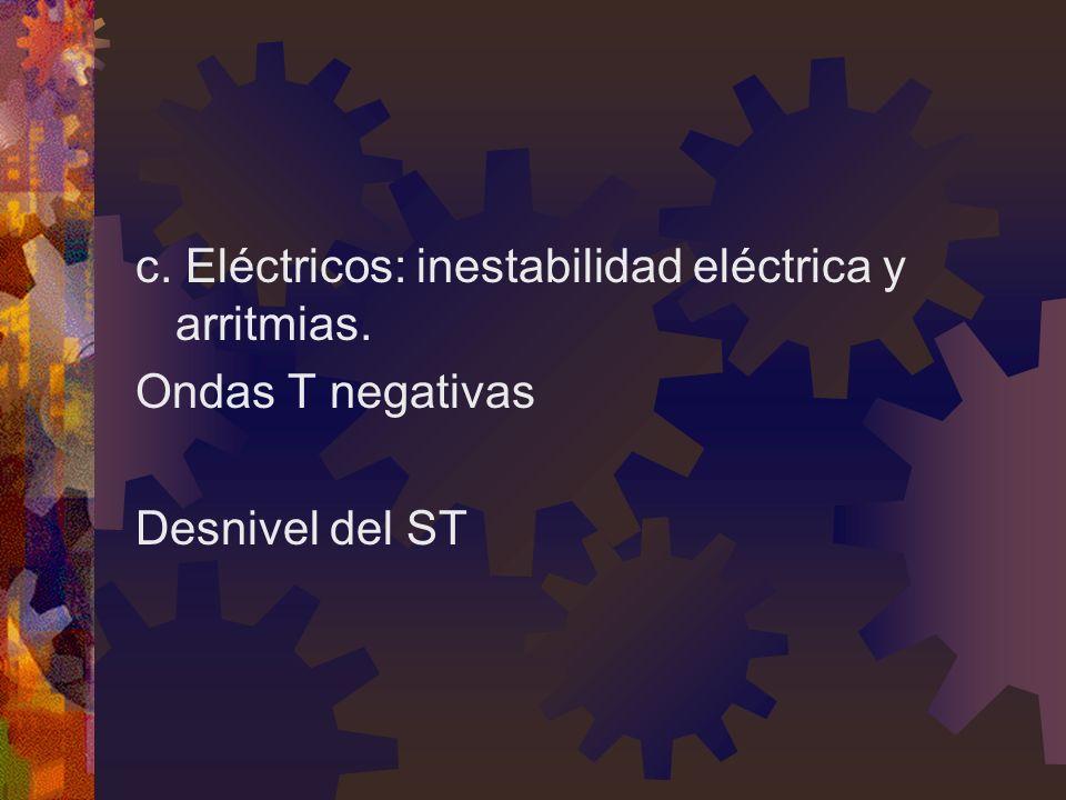 c. Eléctricos: inestabilidad eléctrica y arritmias. Ondas T negativas Desnivel del ST