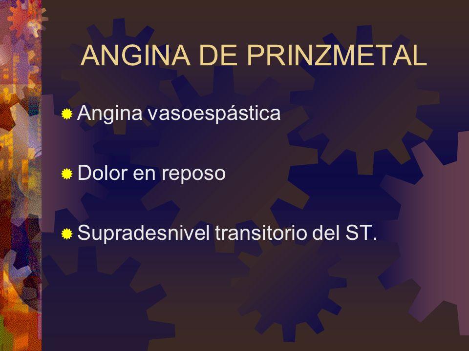 ANGINA DE PRINZMETAL Angina vasoespástica Dolor en reposo Supradesnivel transitorio del ST.