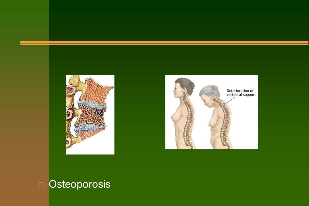 n Osteoporosis