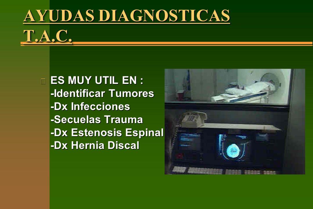 AYUDAS DIAGNOSTICAS T.A.C. n ES MUY UTIL EN : -Identificar Tumores -Dx Infecciones -Secuelas Trauma -Dx Estenosis Espinal -Dx Hernia Discal