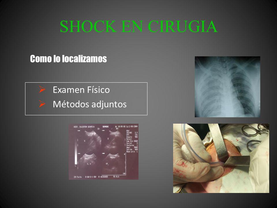 SHOCK EN CIRUGIA Examen Físico Métodos adjuntos Como lo localizamos