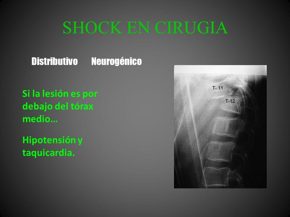 SHOCK EN CIRUGIA Si la lesión es por debajo del tórax medio… Hipotensión y taquicardia. Distributivo Neurogénico