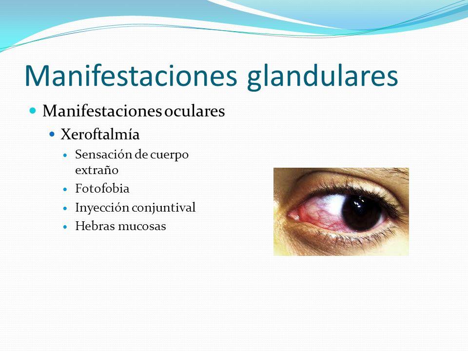Manifestaciones glandulares Manifestaciones oculares Xeroftalmía Sensación de cuerpo extraño Fotofobia Inyección conjuntival Hebras mucosas