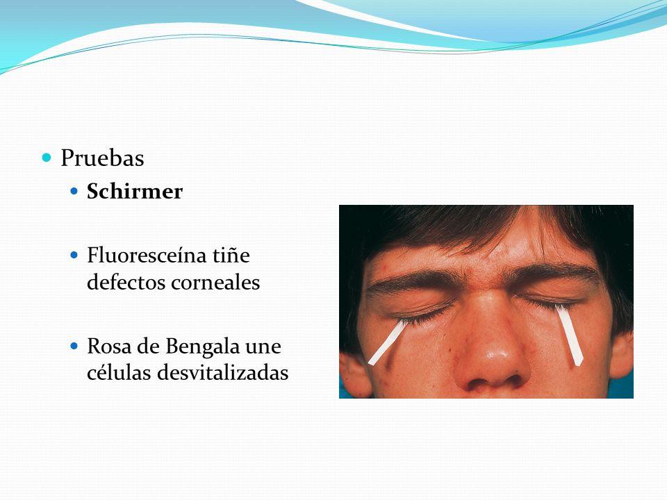 Pruebas Schirmer Fluoresceína tiñe defectos corneales Rosa de Bengala une células desvitalizadas