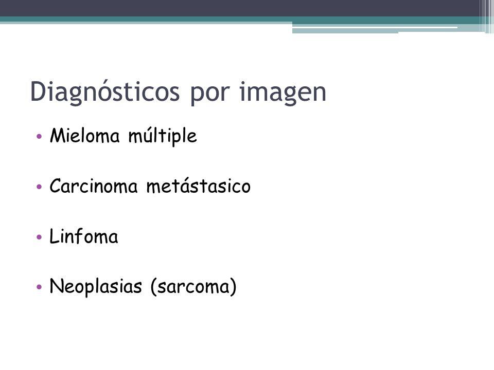 Mieloma múltiple Carcinoma metástasico Linfoma Neoplasias (sarcoma) Diagnósticos por imagen