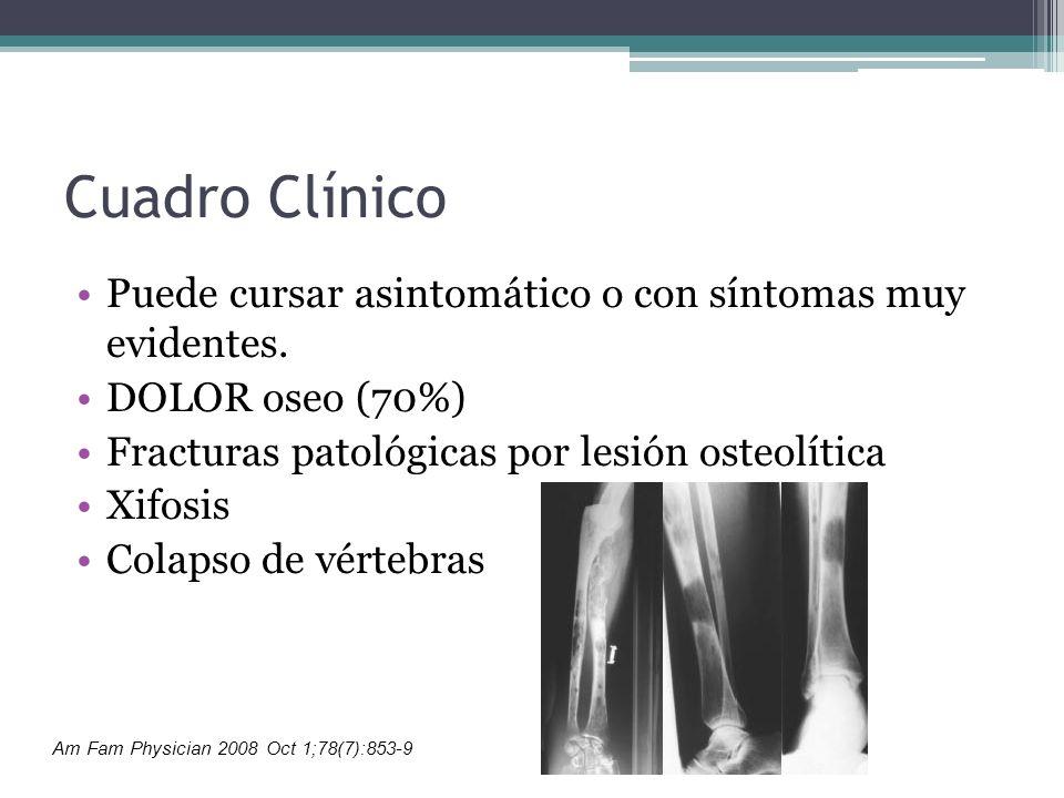 Cuadro Clínico Puede cursar asintomático o con síntomas muy evidentes. DOLOR oseo (70%) Fracturas patológicas por lesión osteolítica Xifosis Colapso d