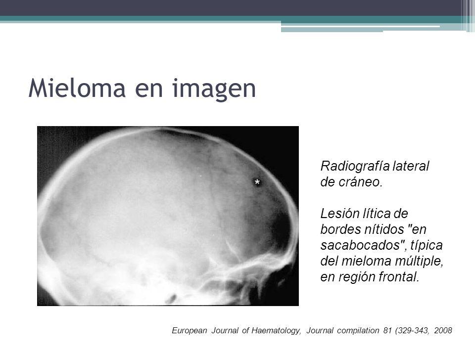 Mieloma en imagen Radiografía lateral de cráneo. Lesión lítica de bordes nítidos