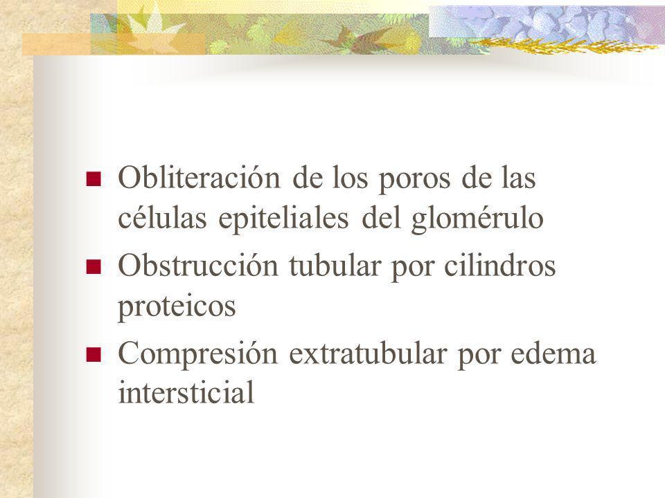 Obliteración de los poros de las células epiteliales del glomérulo Obstrucción tubular por cilindros proteicos Compresión extratubular por edema inter