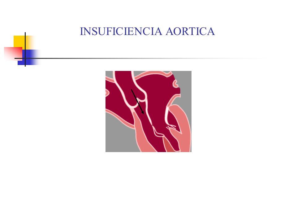 Estenosis Aórtica Calcificación de las cúspides valvulares restringe el flujo anterógrado– eyección forzada desde ventriculo hacia circulación sistémica.