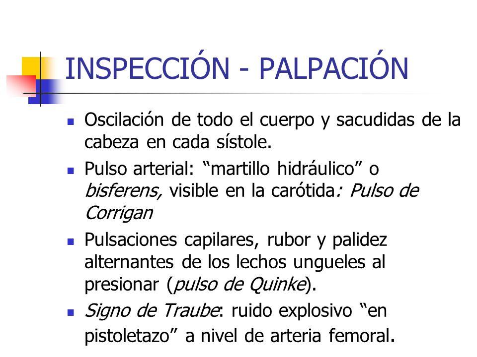 Auscultación Soplo de eyección, mesosistólico de tono medio, áspero, romboidal (aumento-disminución) Irradiado a borde esternal izquierdo, carótida y frémito palpable.