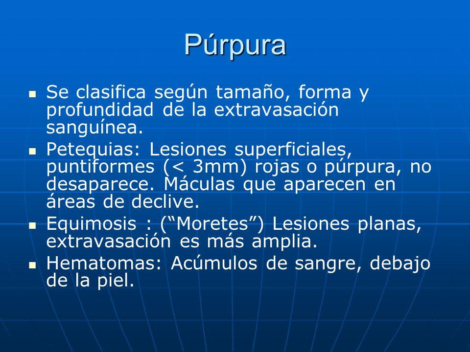 Púrpura Se clasifica según tamaño, forma y profundidad de la extravasación sanguínea. Petequias: Lesiones superficiales, puntiformes (< 3mm) rojas o p