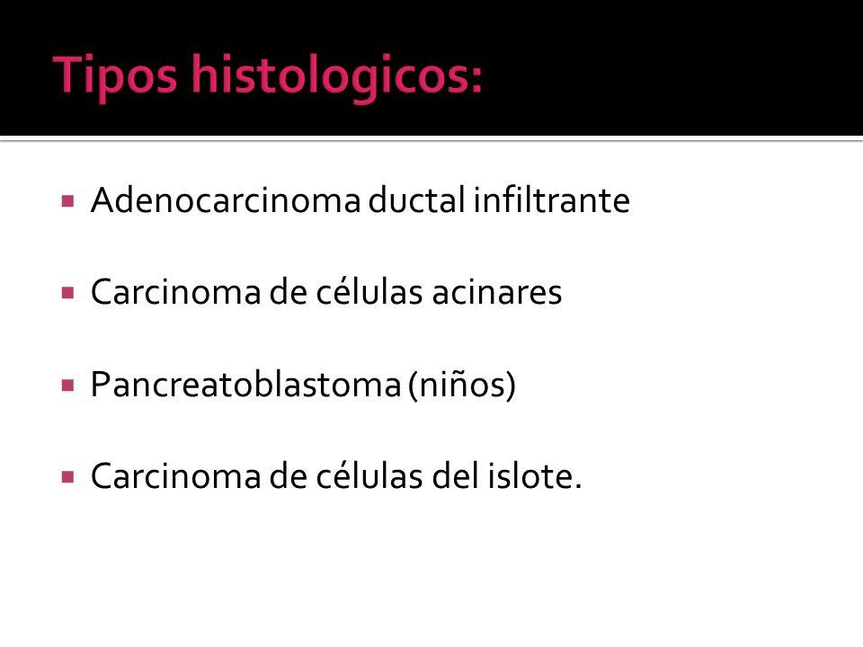 Adenocarcinoma ductal infiltrante Carcinoma de células acinares Pancreatoblastoma (niños) Carcinoma de células del islote.