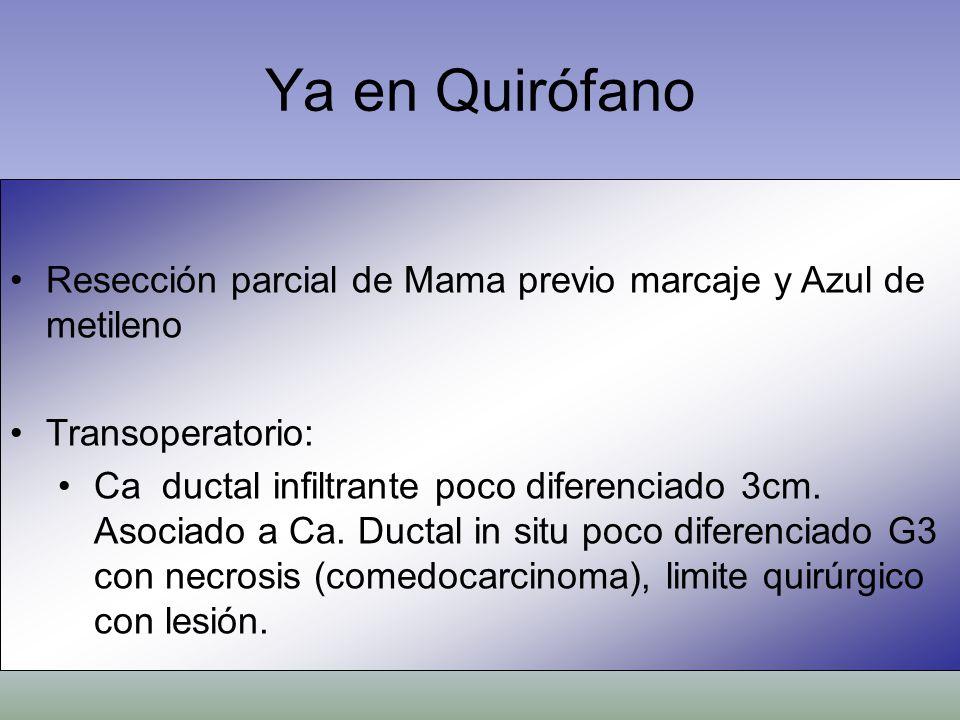 Resección parcial de Mama previo marcaje y Azul de metileno Transoperatorio: Ca ductal infiltrante poco diferenciado 3cm. Asociado a Ca. Ductal in sit