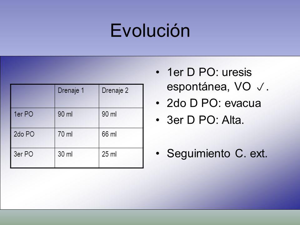Evolución Drenaje 1Drenaje 2 1er PO90 ml 2do PO70 ml66 ml 3er PO30 ml25 ml 1er D PO: uresis espontánea, VO. 2do D PO: evacua 3er D PO: Alta. Seguimien