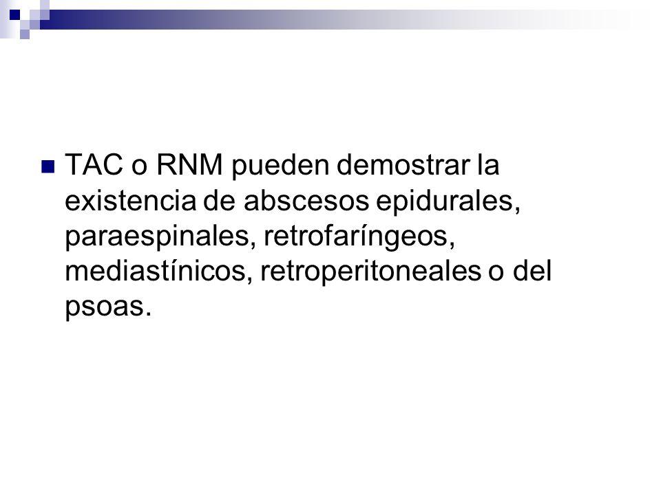 TAC o RNM pueden demostrar la existencia de abscesos epidurales, paraespinales, retrofaríngeos, mediastínicos, retroperitoneales o del psoas.
