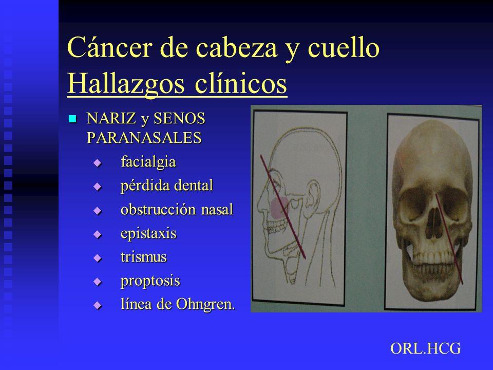 Cáncer de cabeza y cuello Hallazgos clínicos NARIZ y SENOS PARANASALES NARIZ y SENOS PARANASALES facialgia facialgia pérdida dental pérdida dental obs