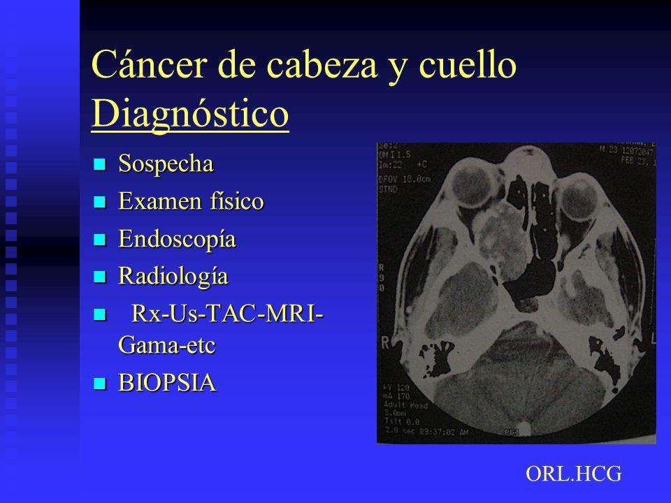 Cáncer de cabeza y cuello Diagnóstico Sospecha Sospecha Examen físico Examen físico Endoscopía Endoscopía Radiología Radiología Rx-Us-TAC-MRI- Gama-et