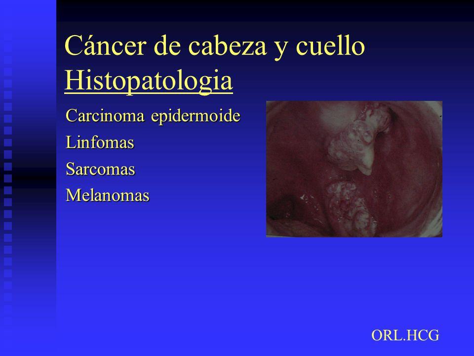 Cáncer de cabeza y cuello Histopatologia Carcinoma epidermoide LinfomasSarcomasMelanomas ORL.HCG