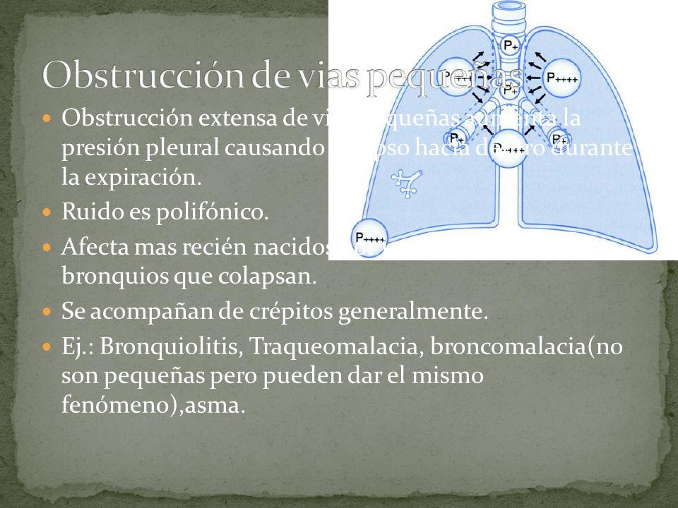 Obstrucción extensa de vias pequeñas aumenta la presión pleural causando colapso hacia dentro durante la expiración. Ruido es polifónico. Afecta mas r