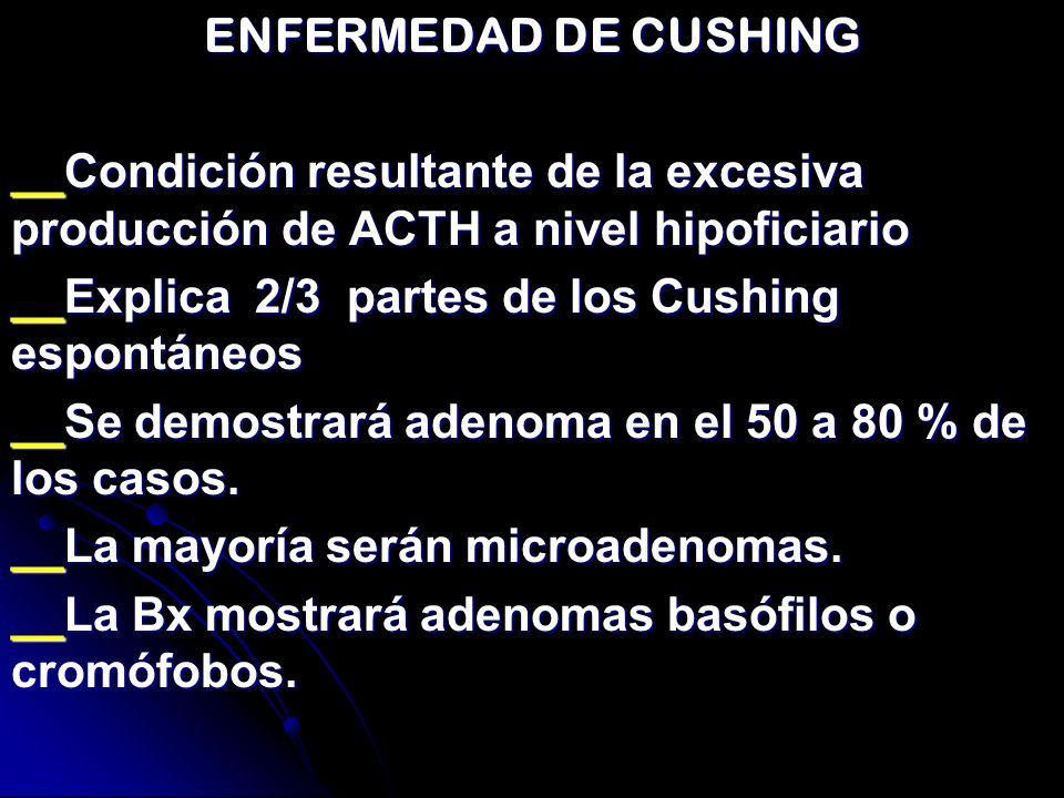 ENFERMEDAD DE CUSHING __Condición resultante de la excesiva producción de ACTH a nivel hipoficiario __Explica 2/3 partes de los Cushing espontáneos __