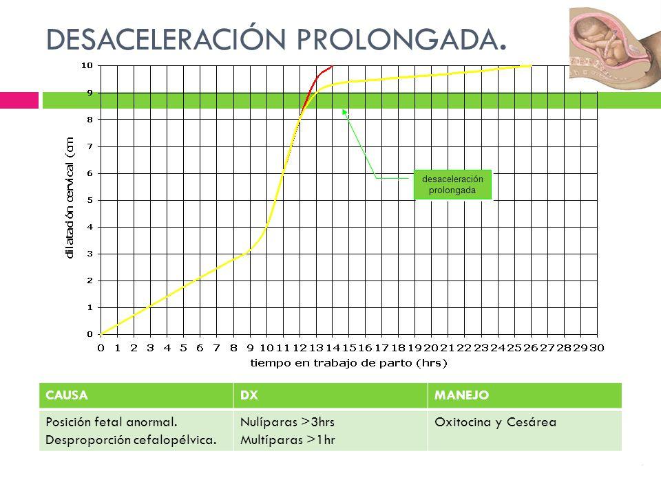 desaceleración prolongada desaceleración prolongada DESACELERACIÓN PROLONGADA.. CAUSADXMANEJO Posición fetal anormal. Desproporción cefalopélvica. Nul