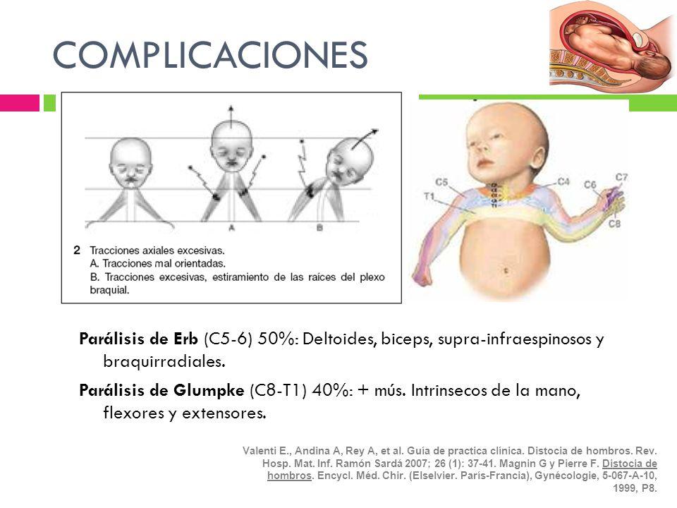 COMPLICACIONES Parálisis de Erb (C5-6) 50%: Deltoides, biceps, supra-infraespinosos y braquirradiales. Parálisis de Glumpke (C8-T1) 40%: + mús. Intrin