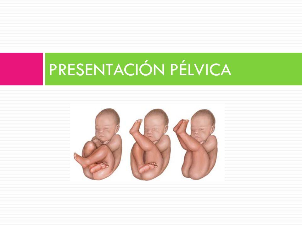 PRESENTACIÓN PÉLVICA