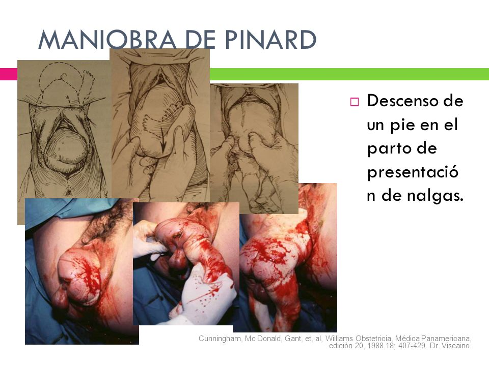 MANIOBRA DE PINARD Descenso de un pie en el parto de presentació n de nalgas. Cunningham, Mc Donald, Gant, et, al, Williams Obstetricia, Médica Paname