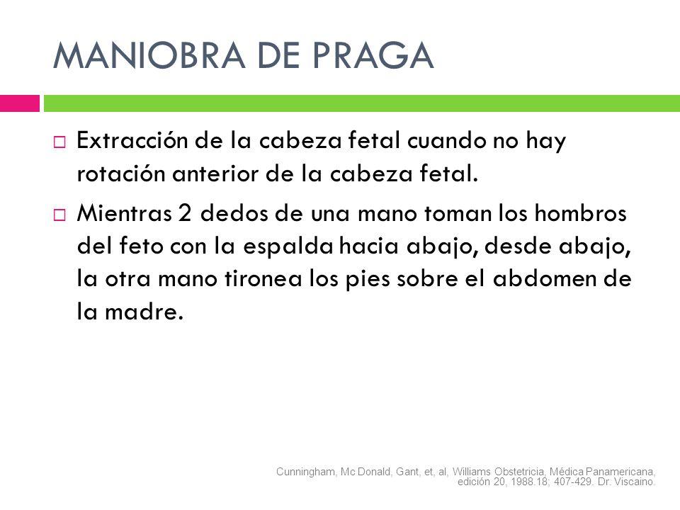 MANIOBRA DE PRAGA Extracción de la cabeza fetal cuando no hay rotación anterior de la cabeza fetal. Mientras 2 dedos de una mano toman los hombros del