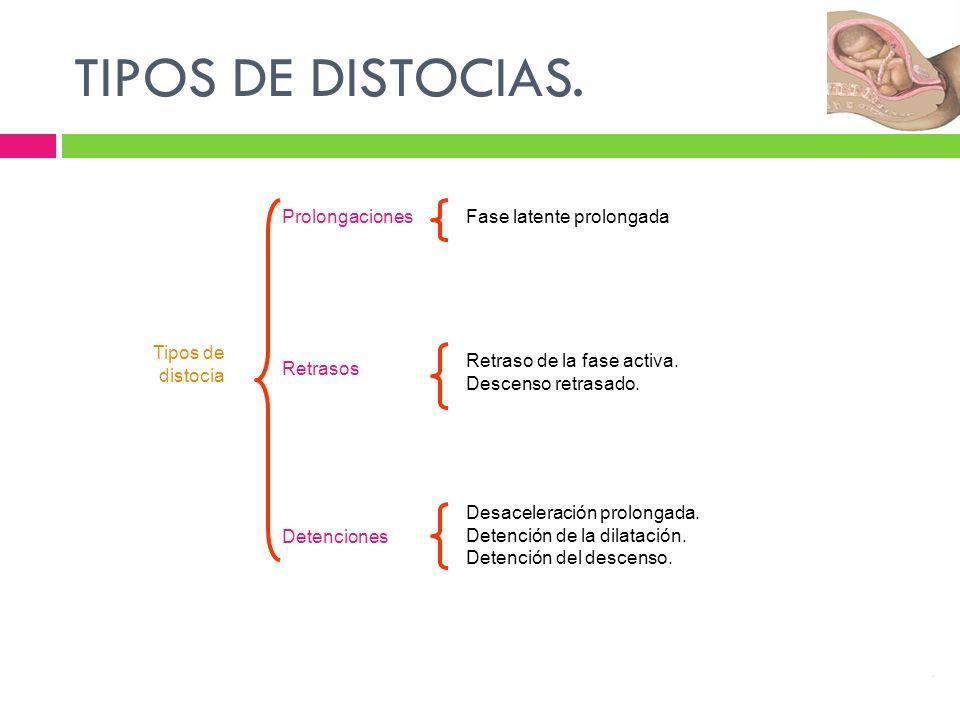 TIPOS DE DISTOCIAS. Tipos de distocia Prolongaciones Retrasos Detenciones Fase latente prolongada Retraso de la fase activa. Descenso retrasado. Desac