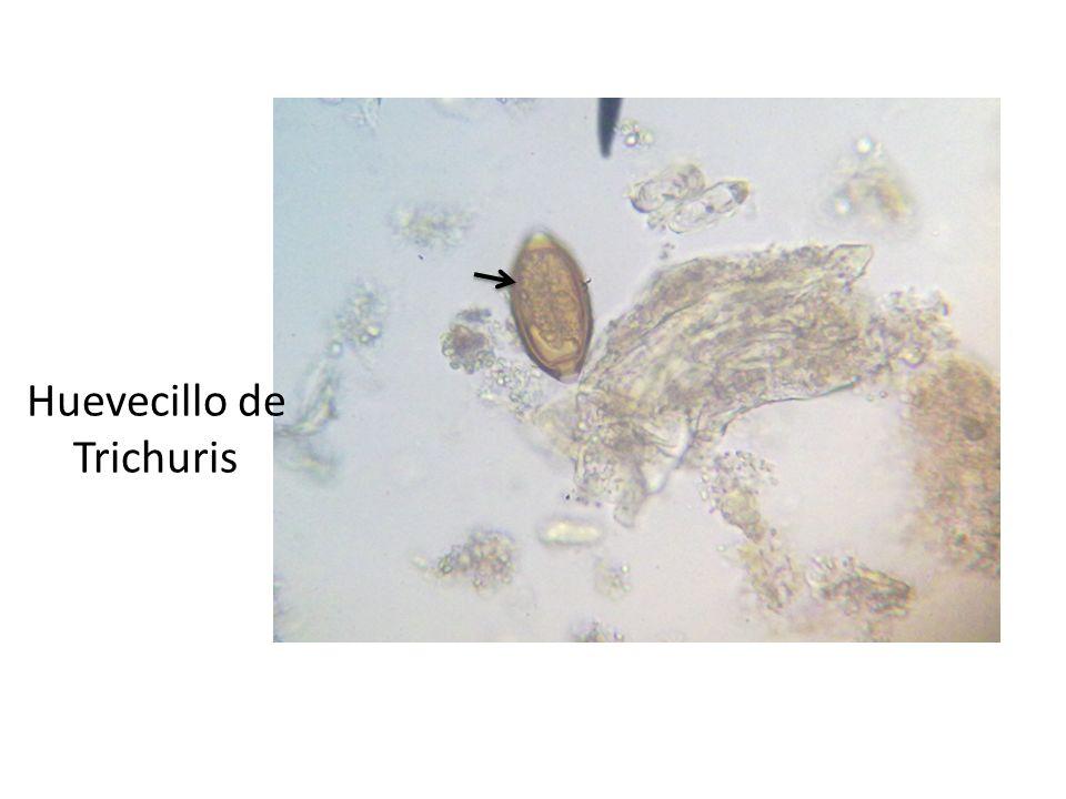 Huevecillo de Trichuris