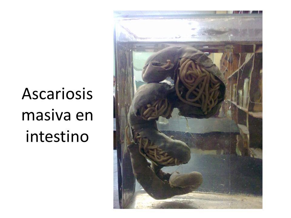 Ascariosis masiva en intestino