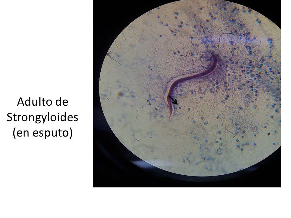 Adulto de Strongyloides (en esputo)