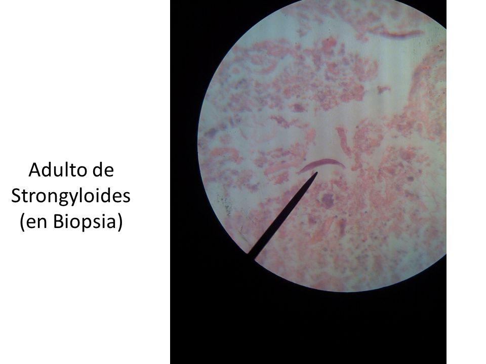 Adulto de Strongyloides (en Biopsia)