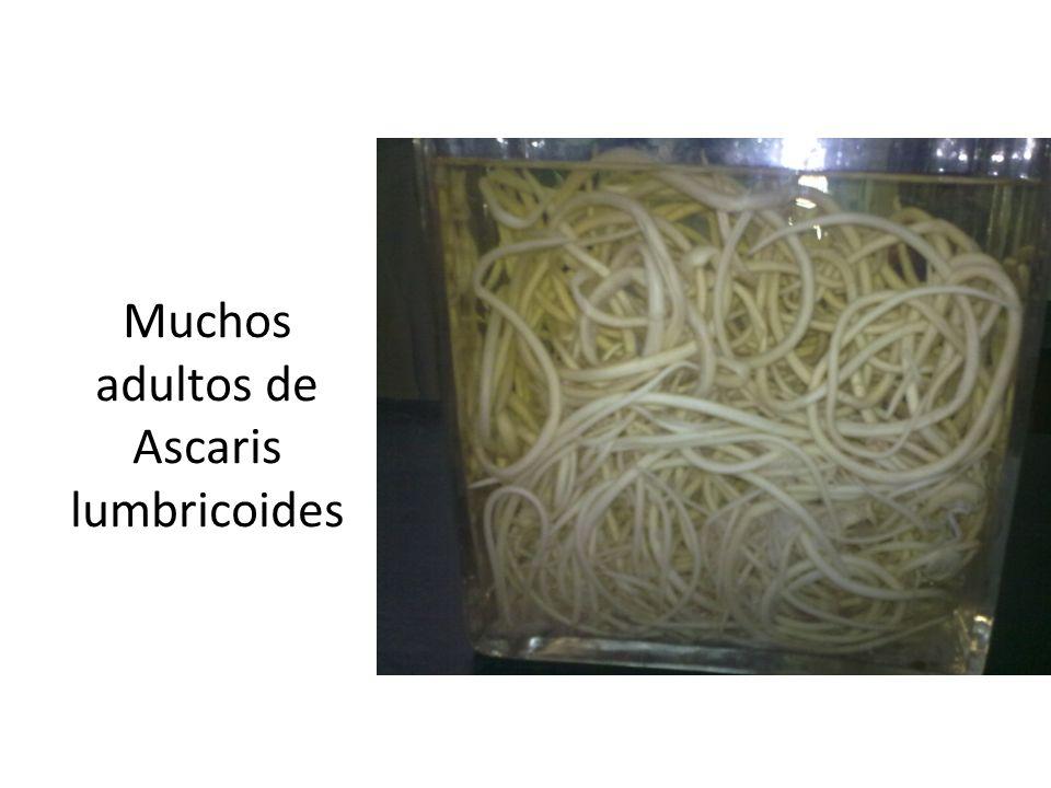 Adultos Ascaris lumbricoides