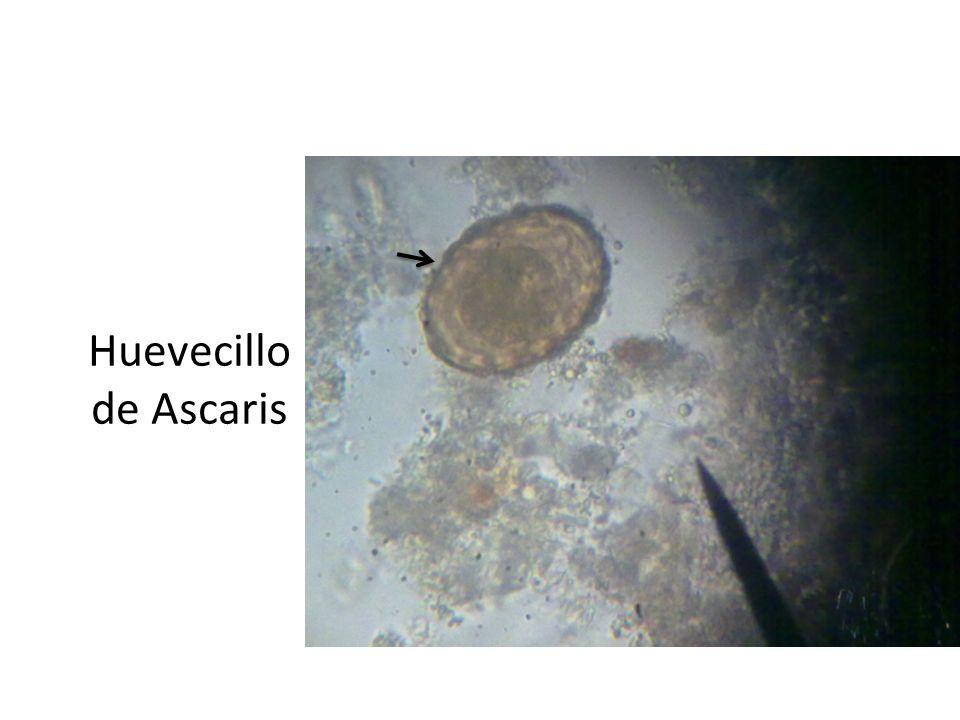 Adultos Enterobius